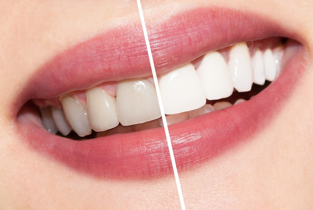 zoom teeth whitening downtown Calgary