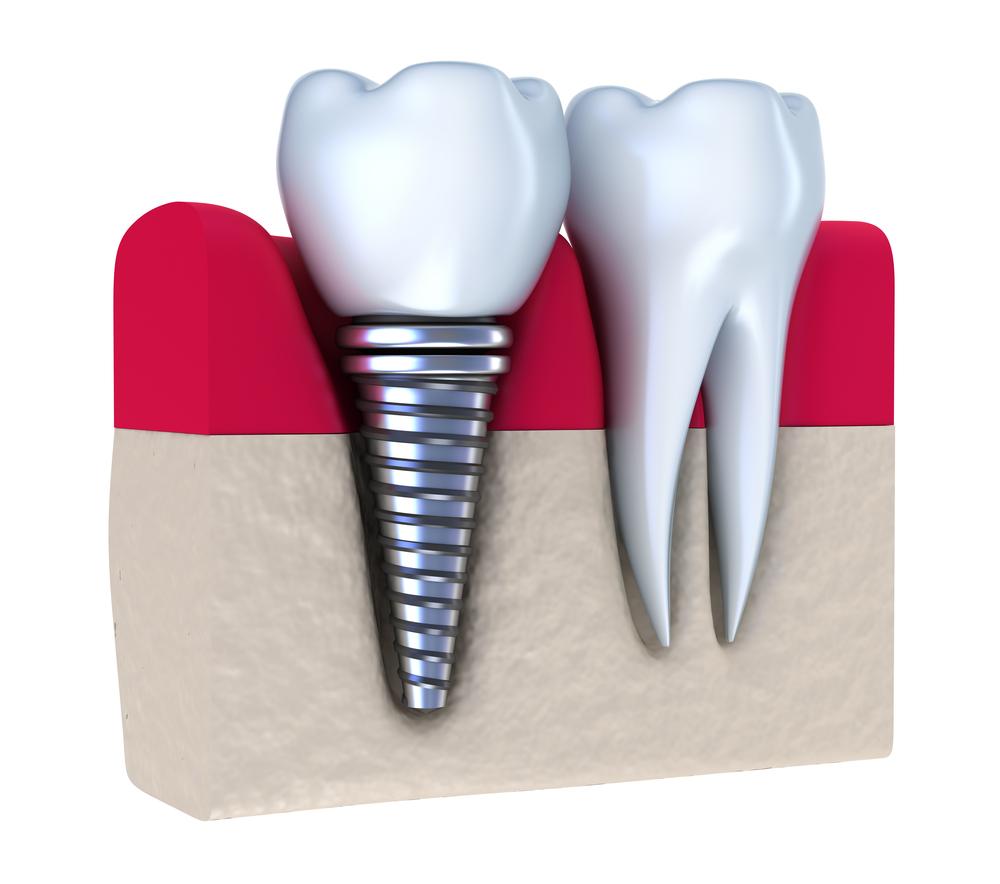 dental implants downtown calgary